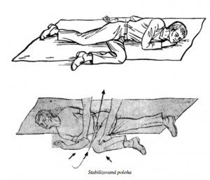 obklad na koleno